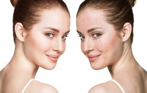 oyster extract powder capsules for perfect looking skin